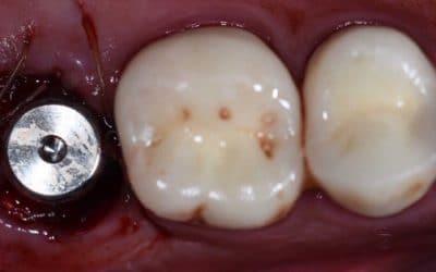Implant Prep