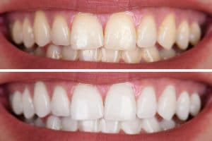 removing stains with teeth whitening