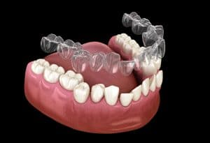 newhall invisalign