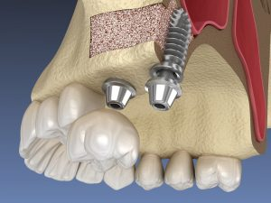 newhall jawbone grafting