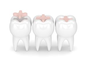 newhall dental fillings