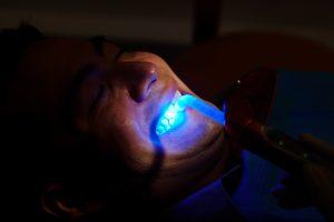 newhall dental bonding