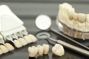 newhall porcelain crowns