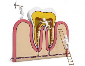 newhall root canal