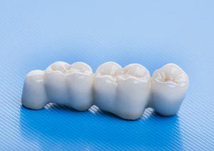 newhall dental bridge