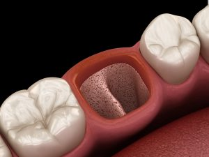 newhall tooth extraction